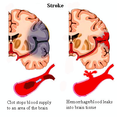 stroke